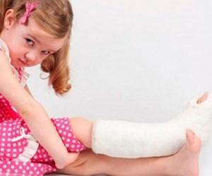 Народные средства при переломах костей