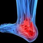 Перелом лодыжки: восстановление и отдых в санатории