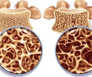Внешняя среда и первичный остеопороз