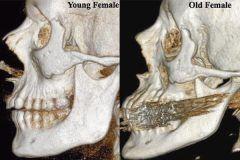 Занятия бегом в юности укрепляют кости и снижают риск остеопороза