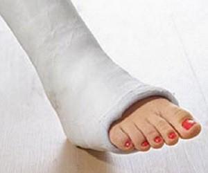 Перелом лодыжки: первая помощь, гигиена и профилактика