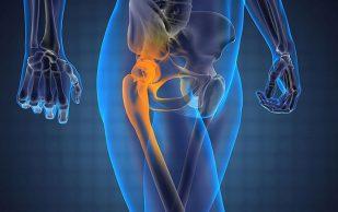 В каких случаях спасти суставы может только операция?