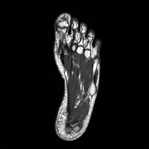 МРТ нижних конечностей