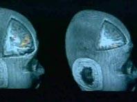 Новый метод позволит быстрее доставлять лекарства при черепно-мозговых травмах