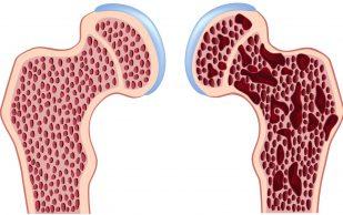 4 лучших продукта для профилактики остеопороза и укрепления здоровья костей