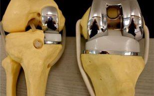 Эндопротезирование коленного сустава в Германии