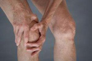Артрит требует физической активности