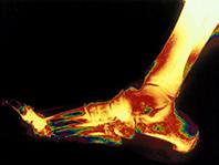 Восстановление хрящевой ткани поможет предотвратить остеоартрит