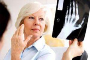Больным псориазом угрожает артрит