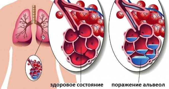 Опасность крупозной пневмонии
