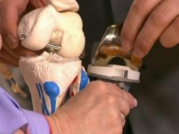Ученые разработали гипоаллергенный имплантат бедренного сустава