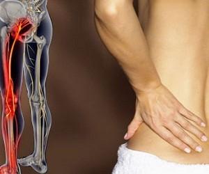 8 продуктов для предотвращения остеопороза
