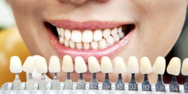 Способы отбеливания зубов домашними средствами