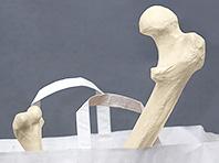 Ученые получили уникальный материал для искусственных костей
