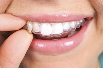 Применение зубных кап