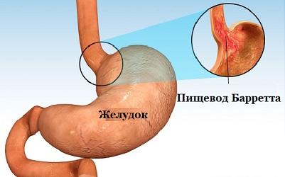 Лечение пищевода Баретта и рефлюкс эзофагита в Израиле