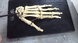 Кости кисти