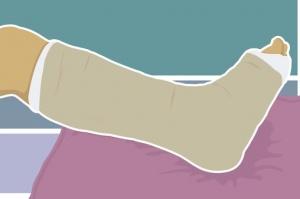 Лечение переломов костей стопы