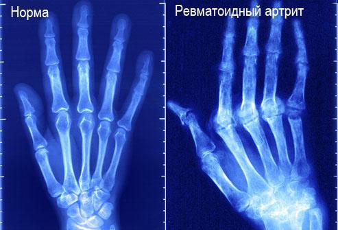 Признаки, симптомы и лечение ревматоидного артрита