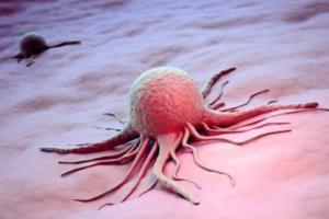 Учёные узнали, что раковые опухоли заразны