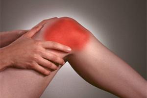 Артроз суставов. Причины, симптомы и лечение