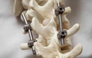 В позвоночник ставят подвижные имплантанты