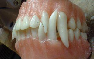 Для восстановления зубной ткани донорами выступят коровы