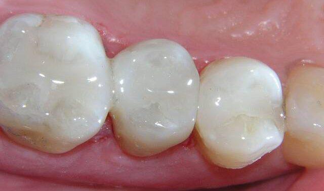 Пломбы статут прочнее зубов