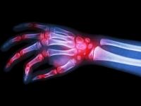 Sanofi и Regeneron добились регистрации нового препарата против ревматоидного артрита