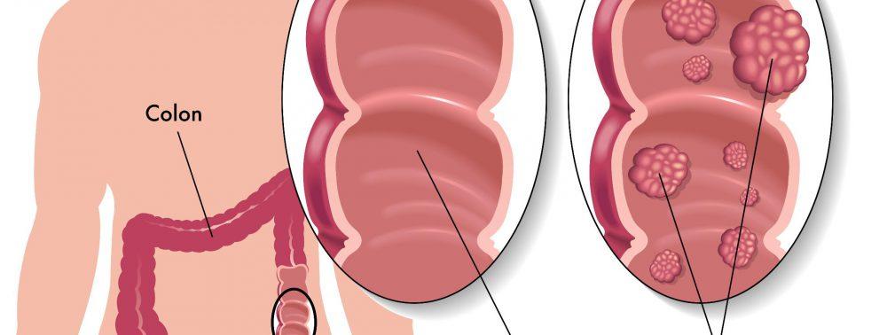 Рак кишечника – как вовремя обнаружить смертельное заболевание