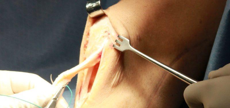 Операция на коленный сустав. В каком случае понадобится?