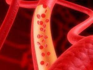 Шведские ученые разработали альтернативу гормональным лекарствам от остеопороза