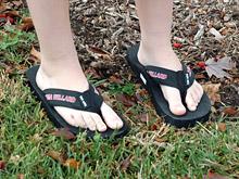 Шлепанцы вредят ногам и калечат более 200 тысяч человек в год