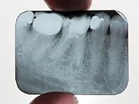 Эксперты собрали самые странные в истории методы лечения и мифы вокруг зубов