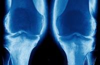Деформирующий остеоартроз — что это такое?