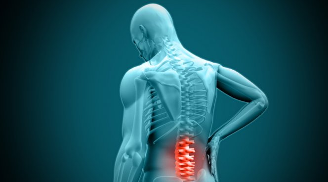 Молодежь все больше страдает от боли в спине
