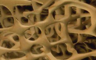 Керамическая пена подражает свойствам натуральной костной ткани