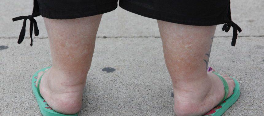 Тучность может пагубно отразиться на здоровье ног