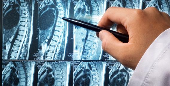МРТ позвоночника – безболезненная, современная и безболезненная диагностика