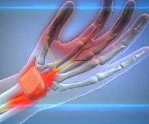 Туннельный синдром: 6 средств против боли в запястье