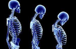Что поможет замедлить естественное разрушение костей