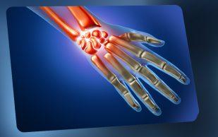 Новый метод упростит лечение ревматоидного артрита