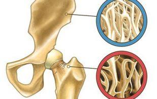 Остеопороз вылечили с помощью инъекций стволовых клеток