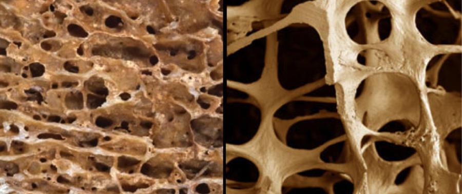 Диета с высоким содержанием протеинов не влияет негативно на плотность костной ткани у женщин