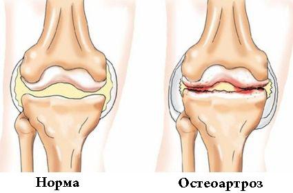 Деформирующий остеоартроз суставов: диагностика и лечение