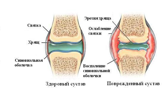 Лечим синовит коленного сустава