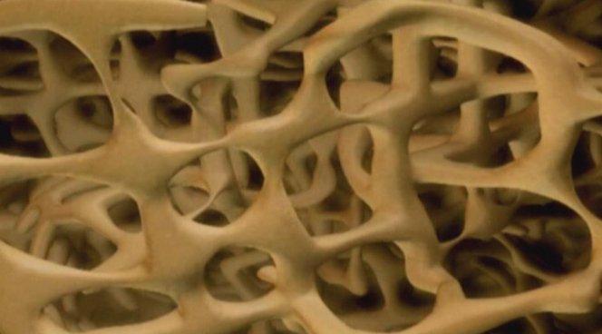 Создан материал для ортопедических имплантатов, превращающихся в костную ткань