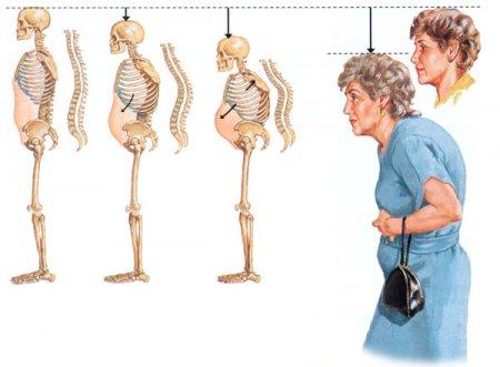 Установлено, почему у современных людей хрупкие кости