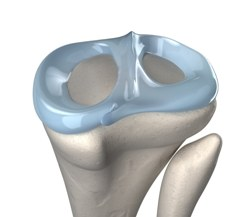 Имплантаты менисков будут печатать на 3D−принтере