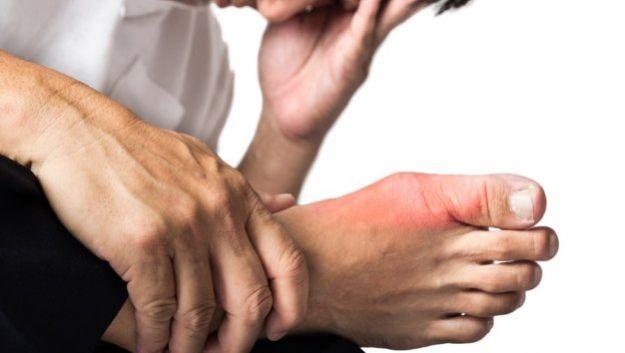 Откуда берутся «косточки» на пальцах ног